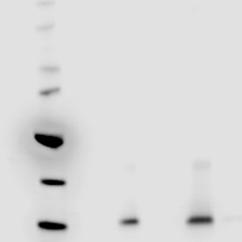 Exosome antigen antibodies